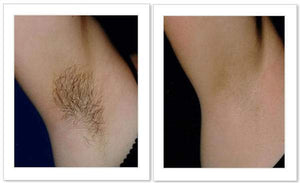Smooth Body Hair Removal Spray