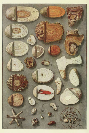 Kidney and Bladder Stones by Max Brödel - 1909