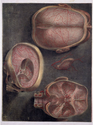 Dissection of the Brain Showing Blood-Vessels by J. F. Gautier D'Agoty - 1746