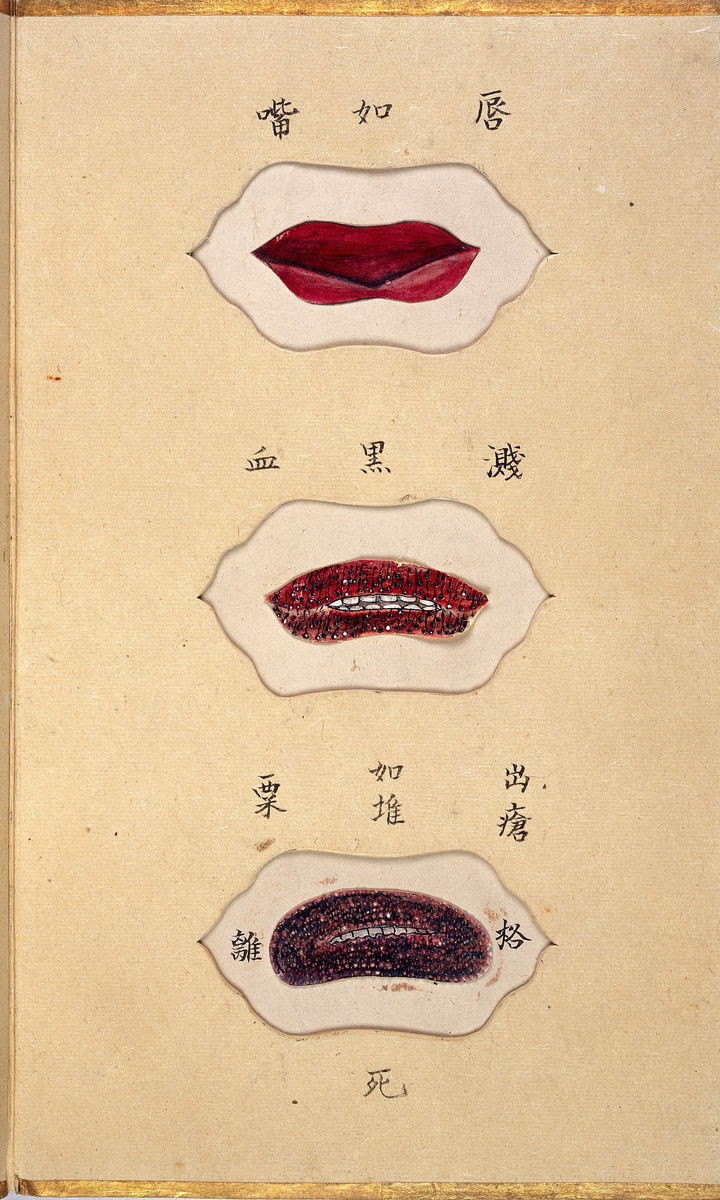 Discoloration of the lips from Smallpox by Ikeda Zuisen