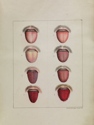 Different Stages of Yellow Fever - 1820