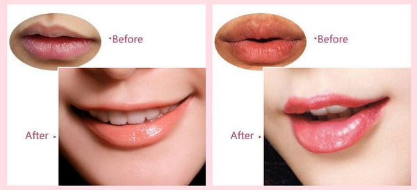 Best Collagen Lip Mask Hydrating Your Lips