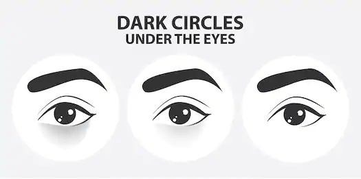 How To Get Rid of Dark Circles at Home-pugnent.com