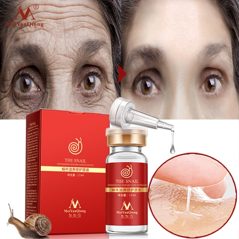Best Korean Eye Cream For Wrinkles-pugnent.com