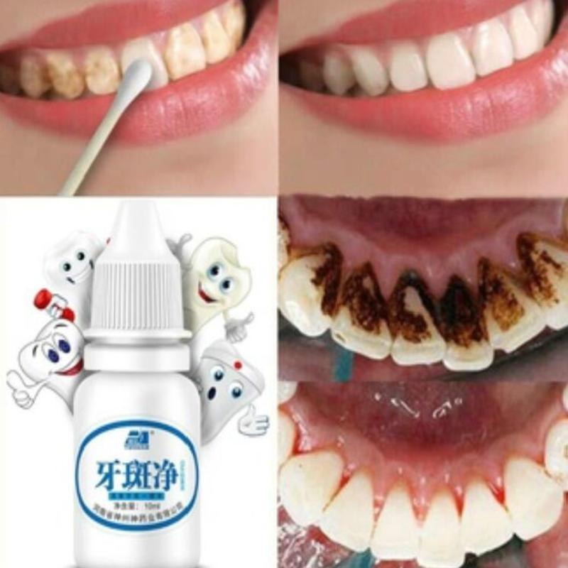 Oral Hygiene Cleaning