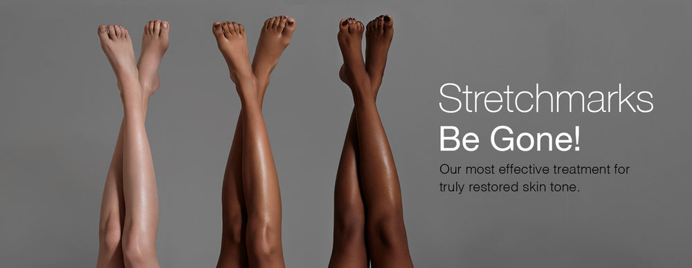 Dominique Bossavy – Stretchmarks Be Gone! Our most effective treatment for truly restored skin tone.