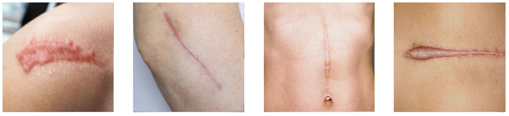 Scars that are more silver, brown, pink, red or purple-like.