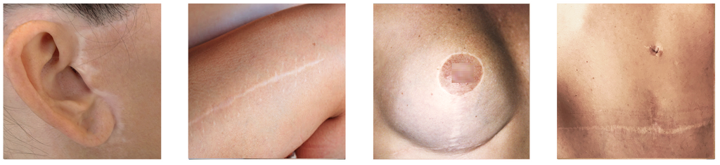 Different white-colored scars shown on the human body.