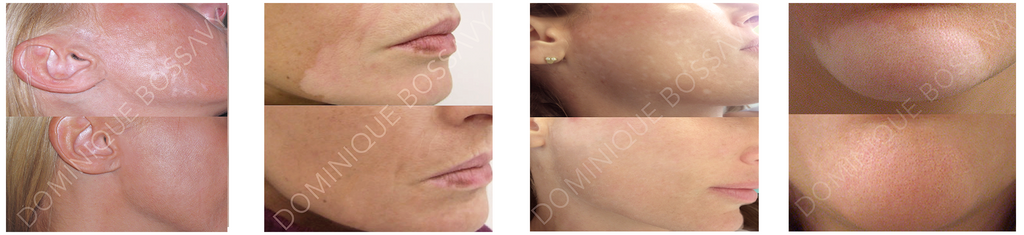 Nano Color Infusion before and after picture: skin discoloration