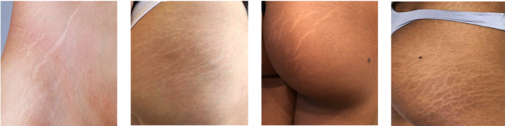 White-looking stretch marks