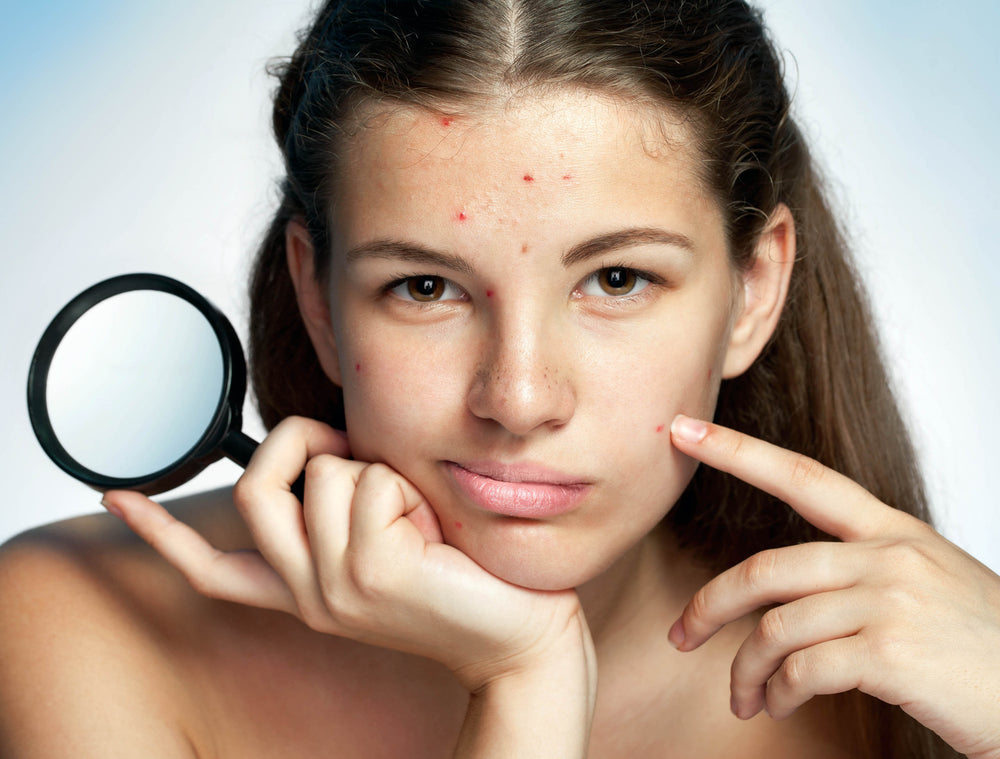 What Exactly IS Acne? Why It Happens and What to Do About It