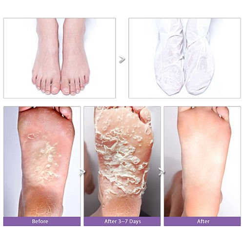 Holika One Shot Foot Peeling Smoothes, Removes dead skin cells, Softens, Peels flakey skin, Moisturizes