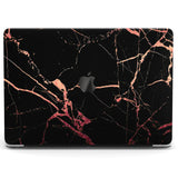 Lex Altern Hard Plastic MacBook Case Black With Pink Glitter