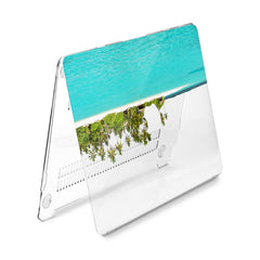 Lex Altern Hard Plastic MacBook Case Palms Beach