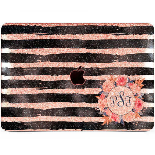Lex Altern MacBook Glitter Case Floral Zebra Print