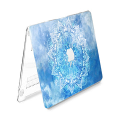 Lex Altern Hard Plastic MacBook Case Blue Sky