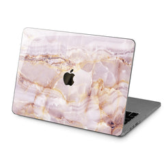 Lex Altern Hard Plastic MacBook Case Pink Marble Design