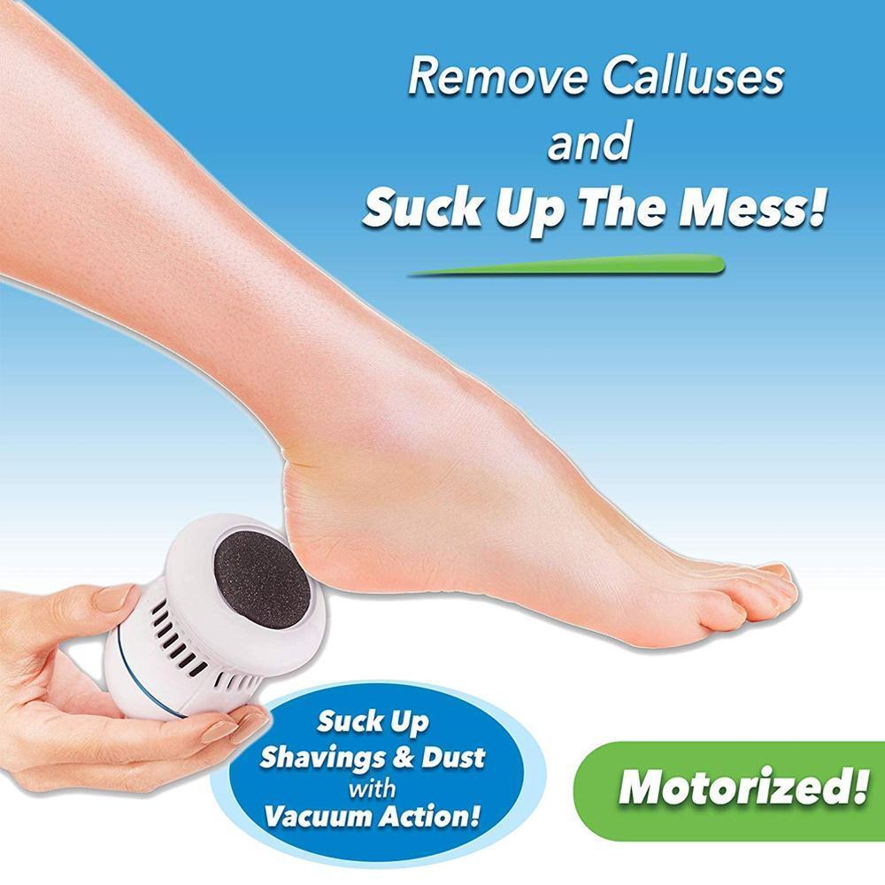 Pediclean™ Callus Remover is a shaver machine that removes tough calluses and helps you to have original silky-smooth skin. It features a powerful nano-abrasion head that spins at 2000 RPM, and yet is extremely gentle on the skin. Besides, the exfoliation device comes with a built-in vacuum to suck up dead skin into a collection chamber.