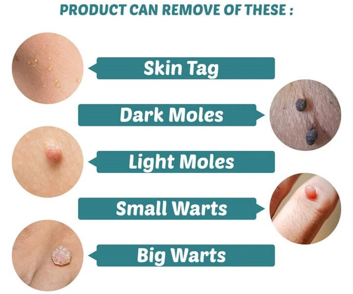 Skin tag removal treatment patch remove skin tag painlessly and permanently without leaving any scar.