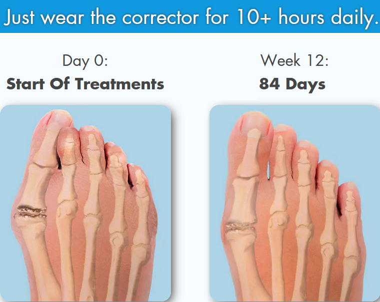 Our Tsumasaki ™ Orthopedic Bunion Corrector supports the metatarsal, protects bunions against deteriorating, and relieves pain all at the same time. Designed by an orthopedic surgeon and recommended by podiatrists worldwide. It is adjustable, and one size fits all. It helps reduce friction between your toes and lets you enjoy walking again!