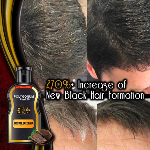 The ReverseGrey™ Hair Darkening Shampoo is formulated to instantly cover grey hair and restore your natural hair's color after use.