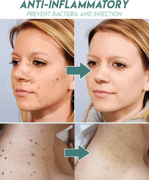 Skin tag removal treatment patch uses dermatologist tested salicylic formulation to remove skin tags safely. The patch works by shrinking and drying the skin tags until they fall off naturally.