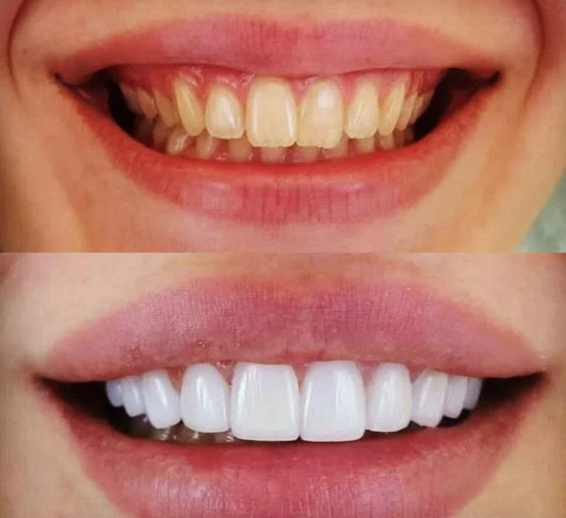 The SmartSmile™ Snap On Perfect Smile Veneers guarantees the most natural veneer replacement of your natural teeth. It provides adjustability, accurate fitting, and no discomfort.