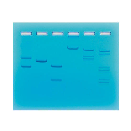 Edvotek 102 Restriction Enzyme Cleavage Patterns of DNA