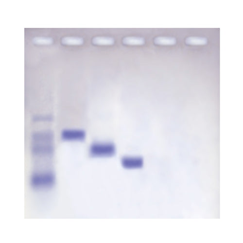 110 Molecular Weight Determination of Proteins (Agarose-based)
