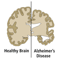 Load image into Gallery viewer, 1116 Researching Alzheimer's Disease by ELISA brain