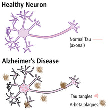 Load image into Gallery viewer, 1116 Researching Alzheimer's Disease by ELISA neurons