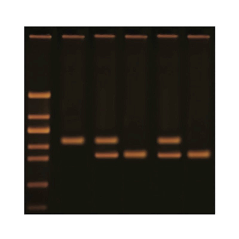 1125 Diagnosing Huntington's Using PCR