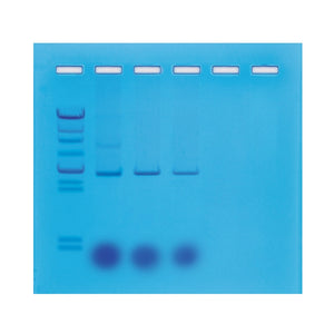 202 Mini-Prep Isolation of Plasmid DNA