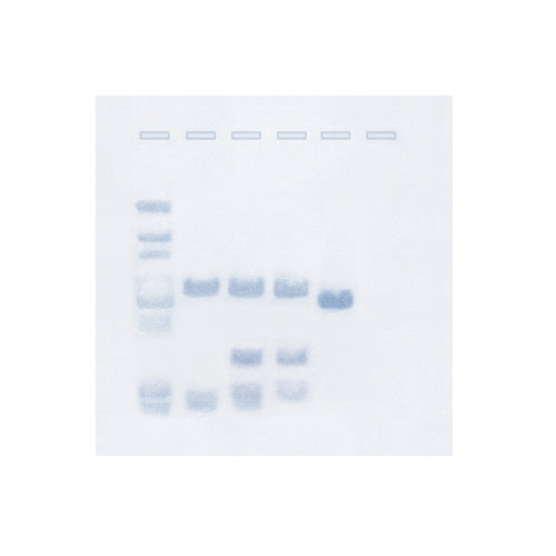207 Southern Blot Analysis