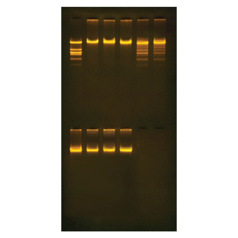 Edvotek 302 Purification of the Restriction Enzyme Eco RI