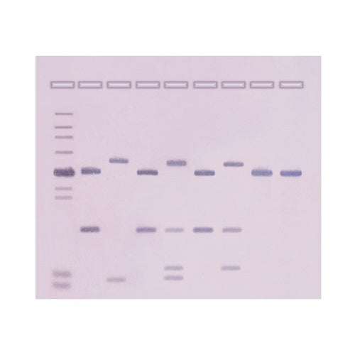 Edvotek 311 DNA Fingerprinting by Southern Blot