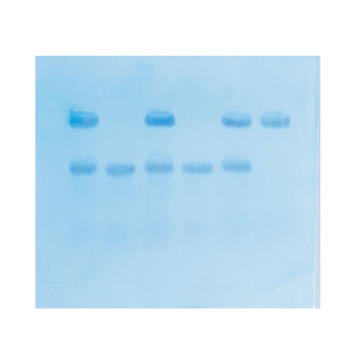 Edvotek 315 In Search of the Sickle Cell Gene by Southern Blot
