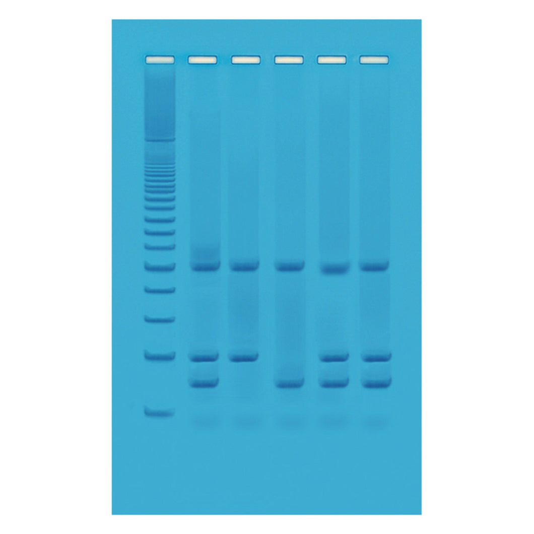 962 Identification of Genetically Modified Foods Using PCR