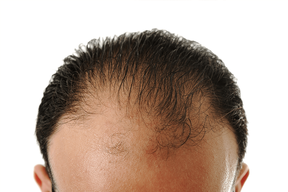 The Best Haircuts for Men with Thinning Hair
