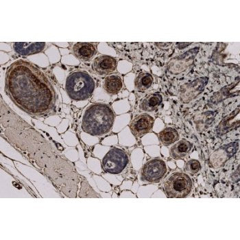 Immunohistochemistry - Anti Trichohyalin antibody [AE15] staining Trichohyalin in Mouse skin tissue sections