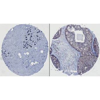 Immunohistochemistry (Formalin/PFA-fixed paraffin-embedded sections) - Anti-HEF1 antibody [2G9] normal breast tissue and ductal carcinoma