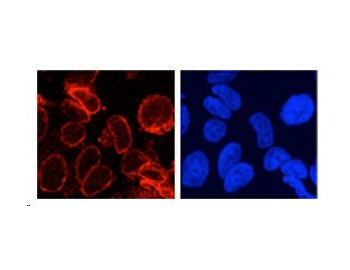 IF using gp210 Antibody (IQ244)