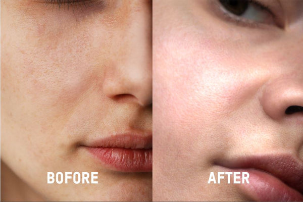 hyaulronic acid serum before and after