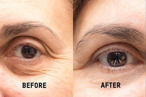 Eye cream for dark circles before and after