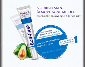 Bioaqua Acne Cream