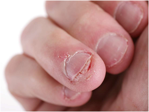 Bitten and unhealthy nails