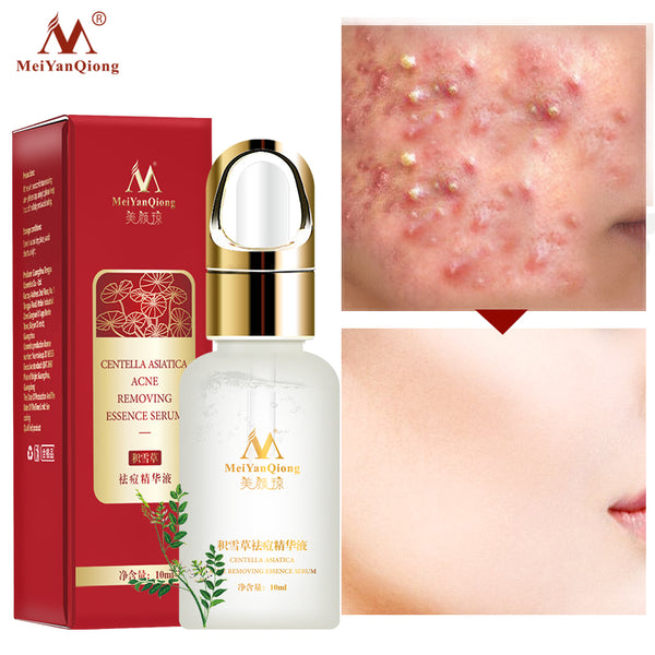 Acne Removing Essence Serum Remove Acne