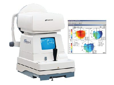 Topcon KR-8000PA Autorefractor/ Keratometer (Pre-Owned)