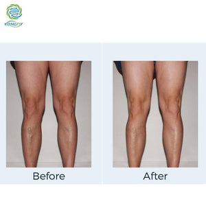 VARICOSE VEINS CREAM {BUY1 TAKE1}