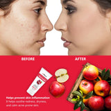 Face Glow Serum with 20% Vitamin C & Apple Cider Vinegar Face Wash Combo (Pack of 2)